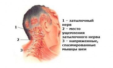 Схема расположения нервов и защемления